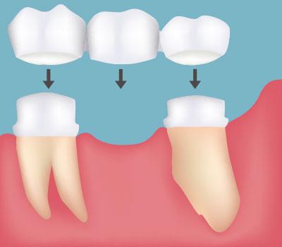 Dental Bridges in Federal Way, WA - Cristel Family Dentistry