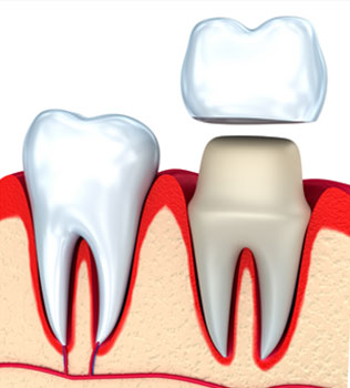 Dental Crowns in Federal Way, WA - Cristel Family Dentistry