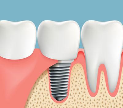 Dental Implants in Federal Way, WA - Cristel Family Dentistry