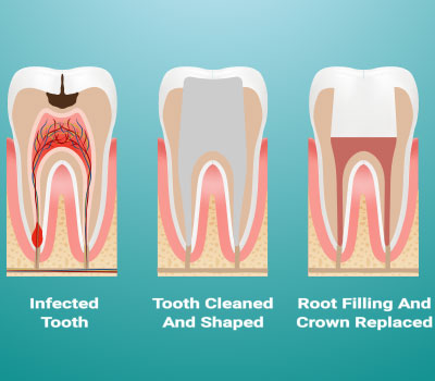 Root Canal Therapy in Federal Way, WA - Cristel Family Dentistry