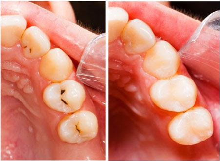 Tooth Colored Fillings in Federal Way, WA - Cristel Family Dentistry