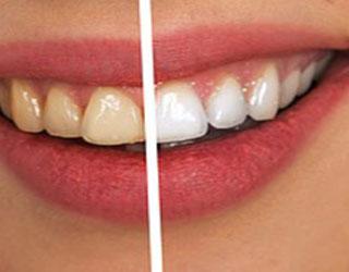 Teeth Whitening in Federal Way, WA - Cristel Family Dentistry